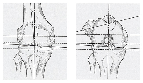 Customised Total Knee Replacement - Cross Section