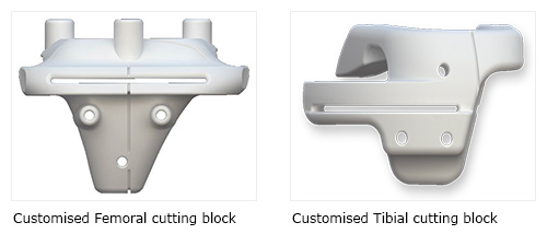 Customised Femoral and Tibial Cutting Blocks