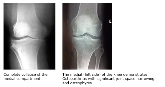 Collapse of the medial compartment of the knee. Osteoarthritis on the  left side of the knee.