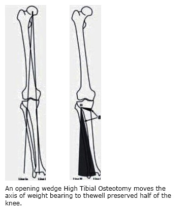 An opening wedge High Tibial Osteotomy