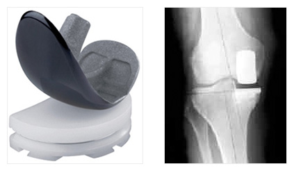 Medial and Lateral Partial Joint Replacement