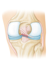 Posterior Cruciate Ligament Tears